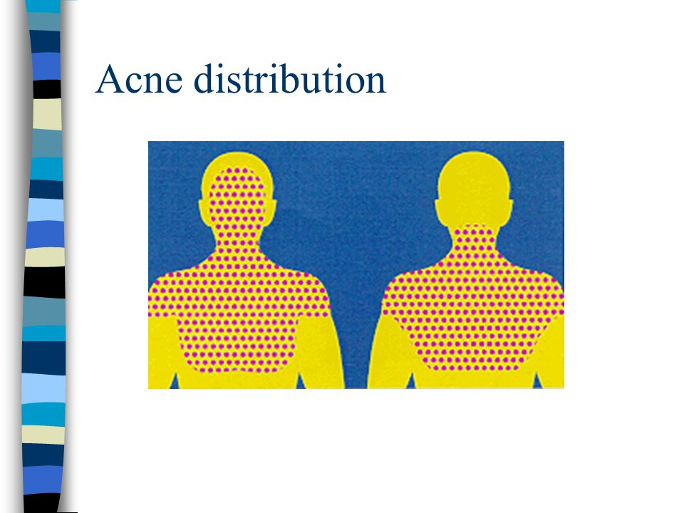 Acne distribution