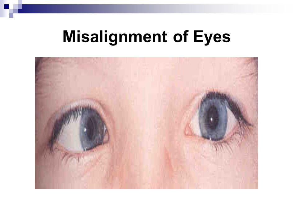 Misalignment of Eyes Presenter's Notes: