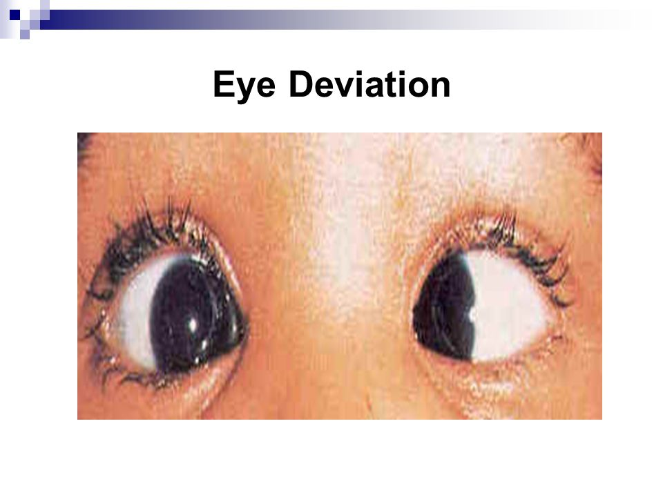 Eye Deviation