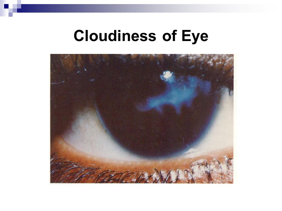 Cloudiness of Eye