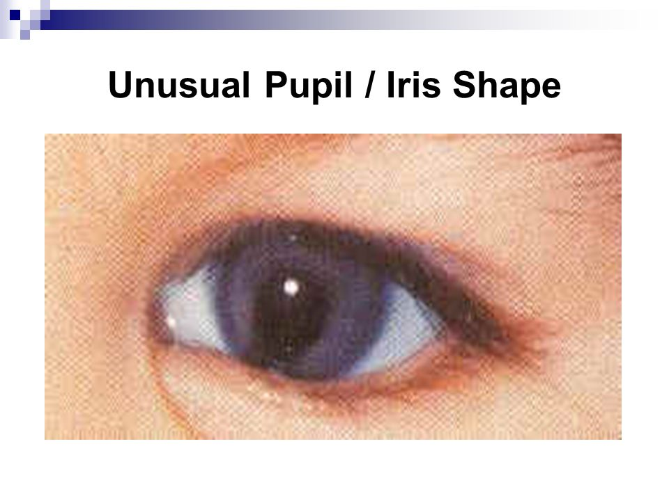 Unusual Pupil / Iris Shape