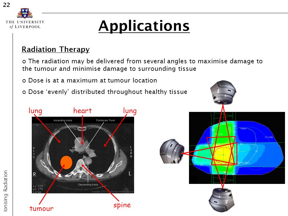Applications Radiation Therapy spine lung tumour heart