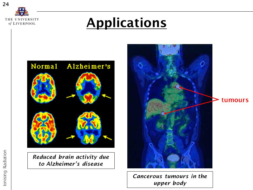 Applications tumours Reduced brain activity due to Alzheimer's disease