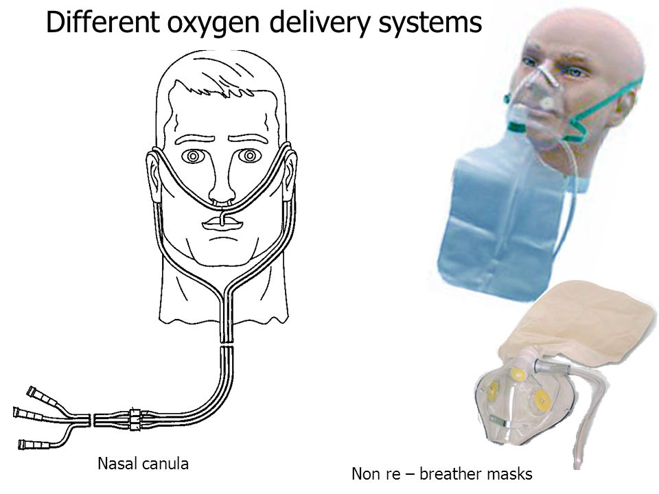 Different oxygen delivery systems