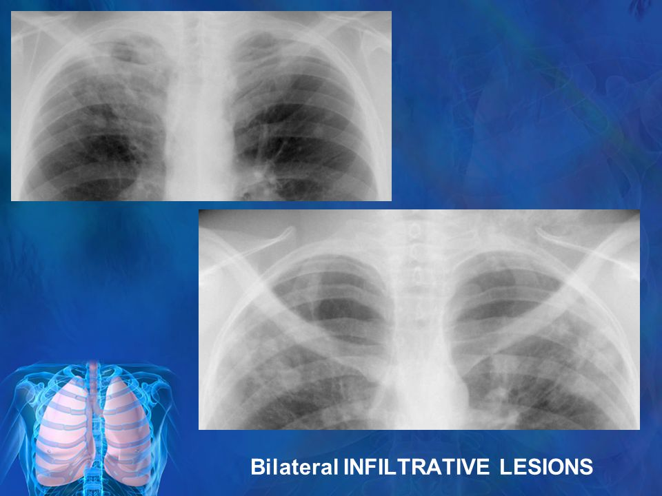 Bilateral INFILTRATIVE LESIONS
