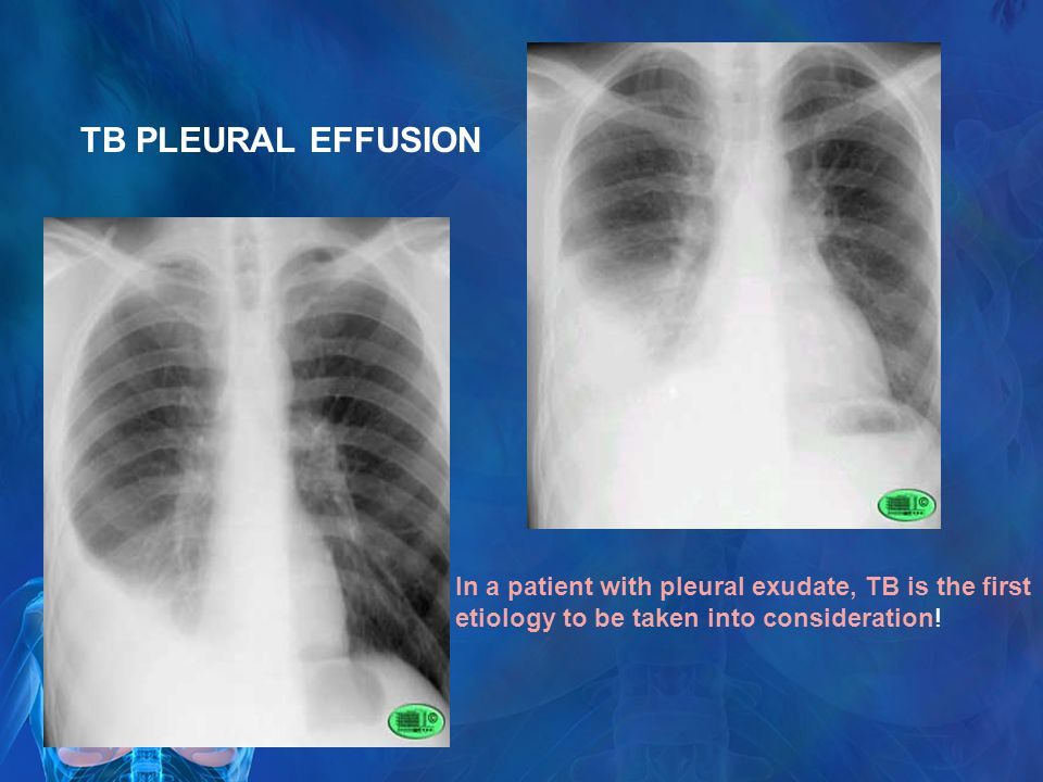 TB PLEURAL EFFUSION In a patient with pleural exudate, TB is the first etiology to be taken into consideration!