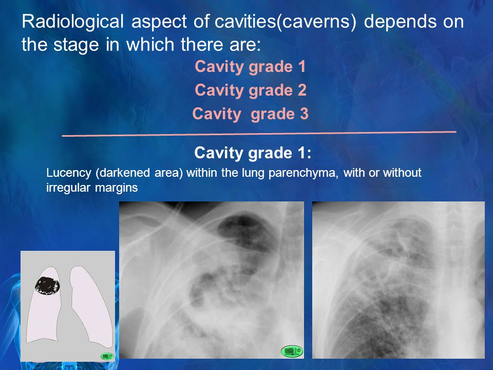 Radiological aspect of cavities(caverns) depends on the stage in which there are: