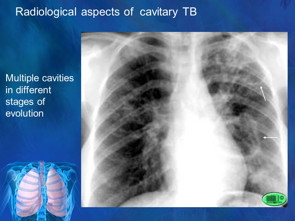 Radiological aspects of cavitary TB