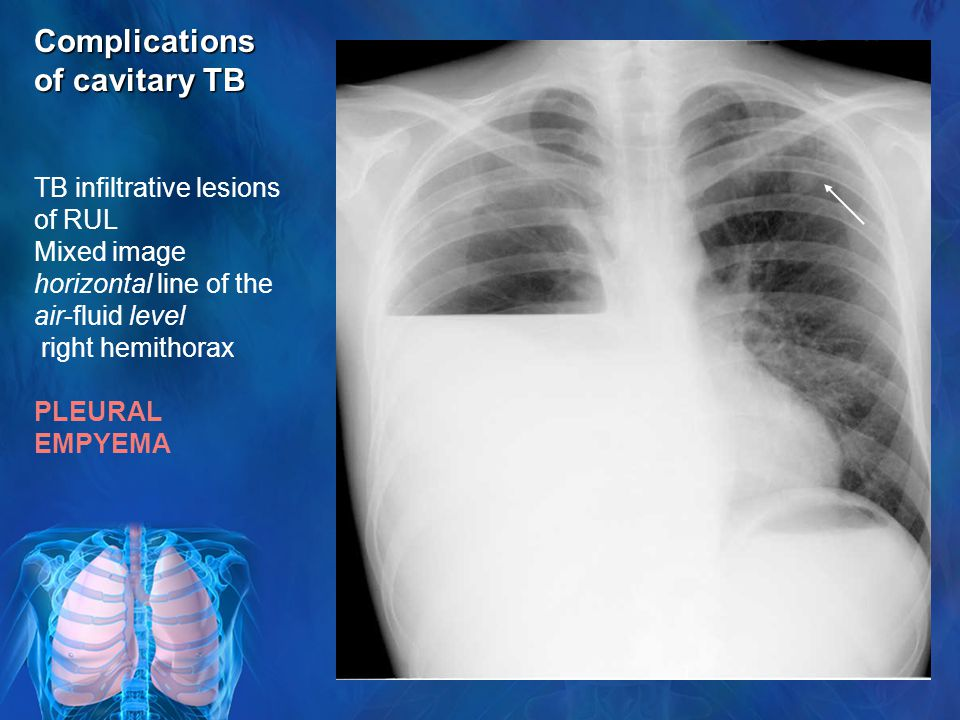 Complications of cavitary TB