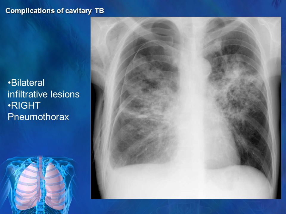 Bilateral infiltrative lesions RIGHT Pneumothorax