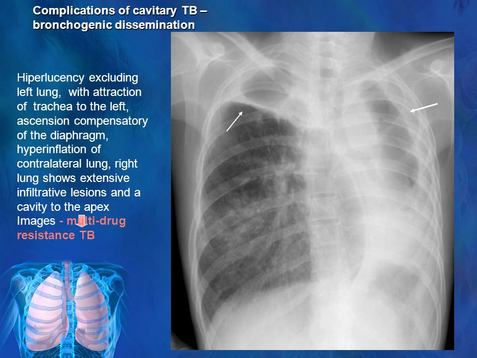 Complications of cavitary TB – bronchogenic dissemination