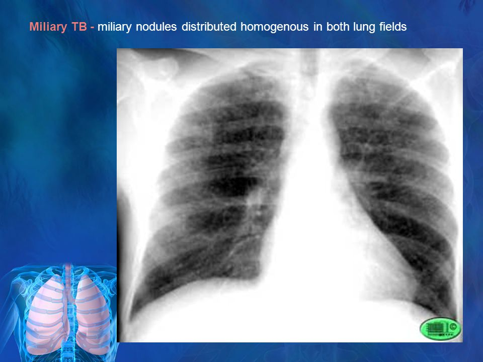 Miliary TB - miliary nodules distributed homogenous in both lung fields
