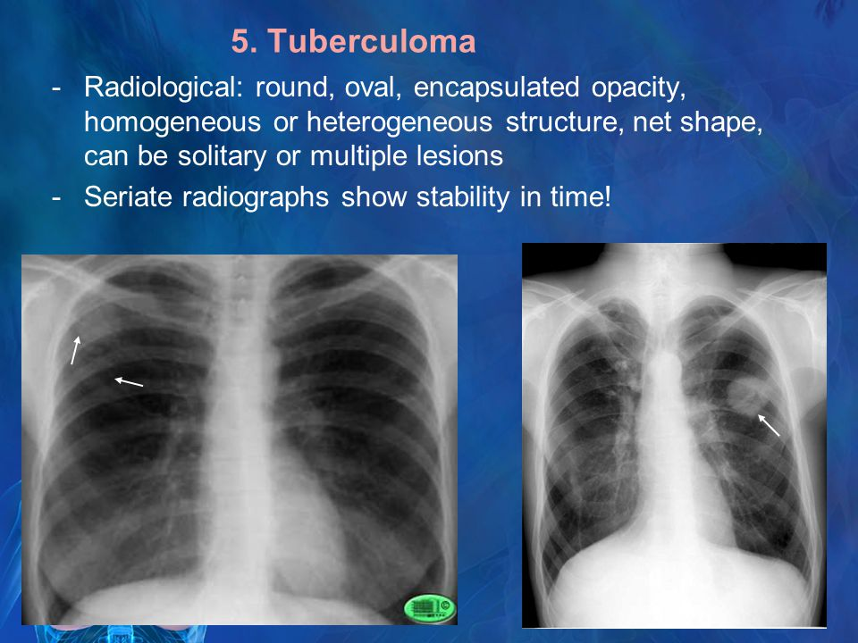 Pulmonary Tuberculosis Radiological Images Ppt Video
