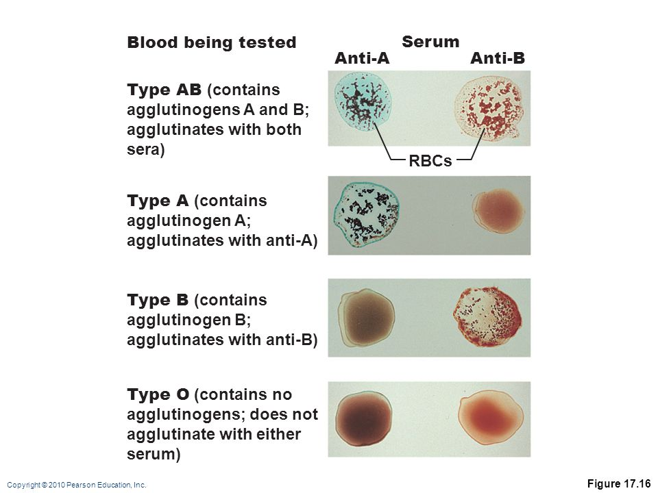 agglutinates with both sera) Blood being tested