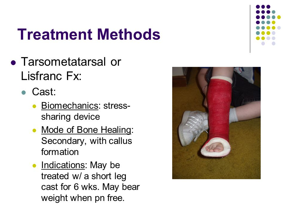 Treatment Methods Tarsometatarsal or Lisfranc Fx: Cast: