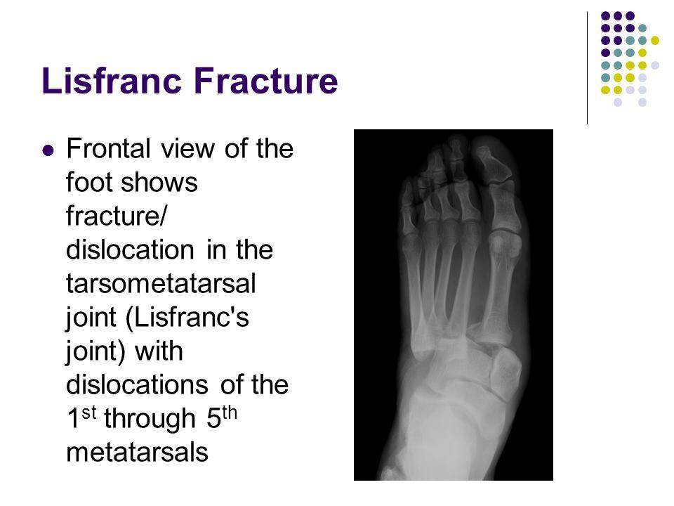 Midfoot Fractures Jenny Jefferis. - ppt video online download