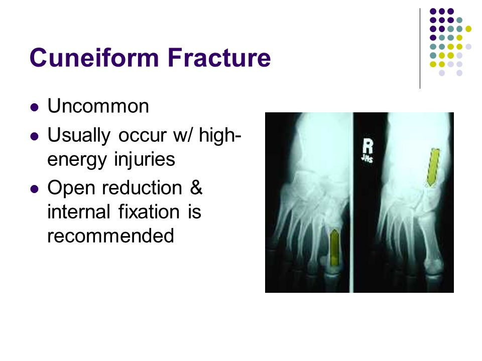 Cuneiform Fracture Uncommon Usually occur w/ high-energy injuries
