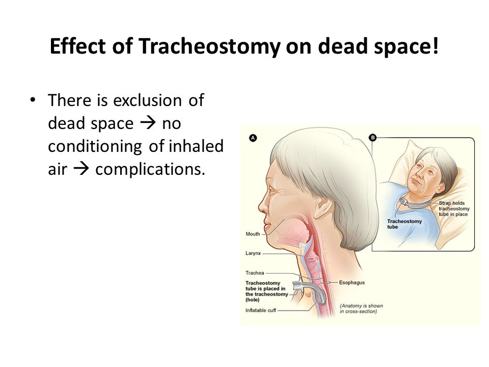 Effect of Tracheostomy on dead space!