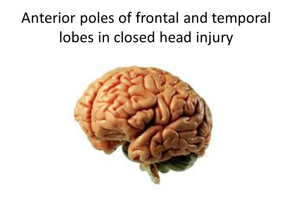 Anterior poles of frontal and temporal lobes in closed head injury
