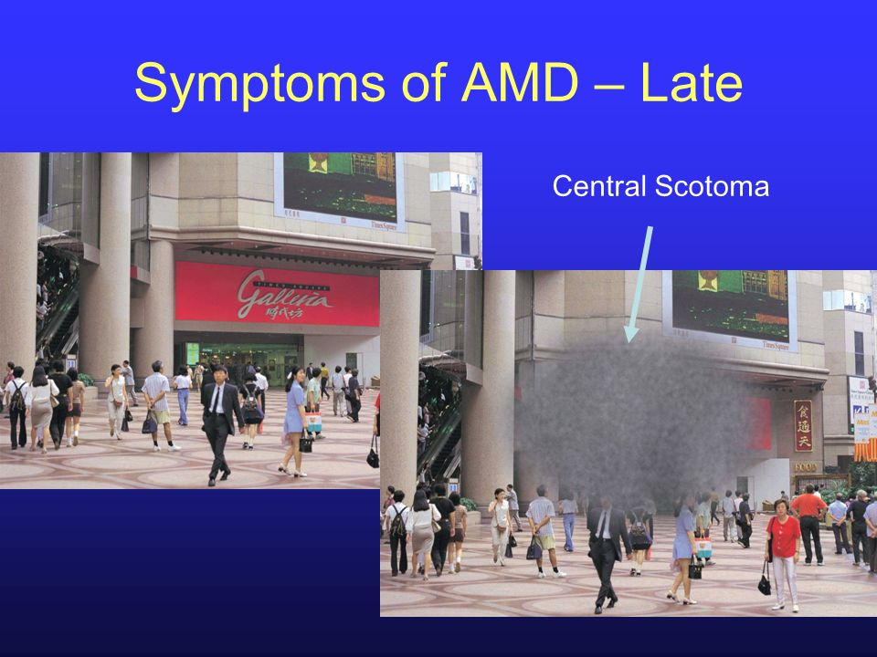 Symptoms of AMD – Late Central Scotoma