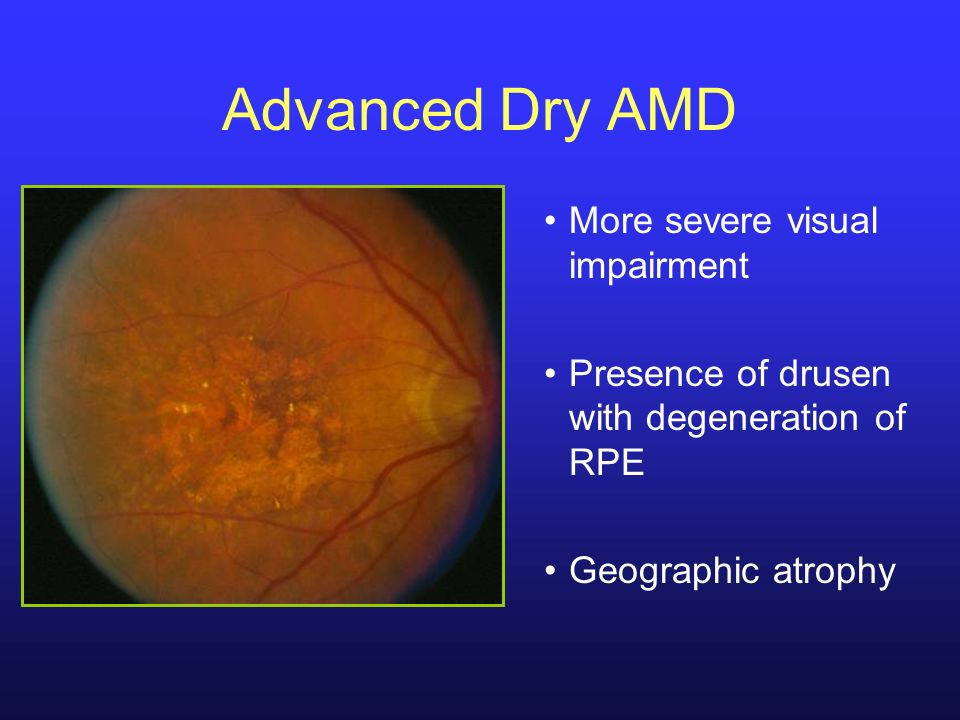 Advanced Dry AMD More severe visual impairment