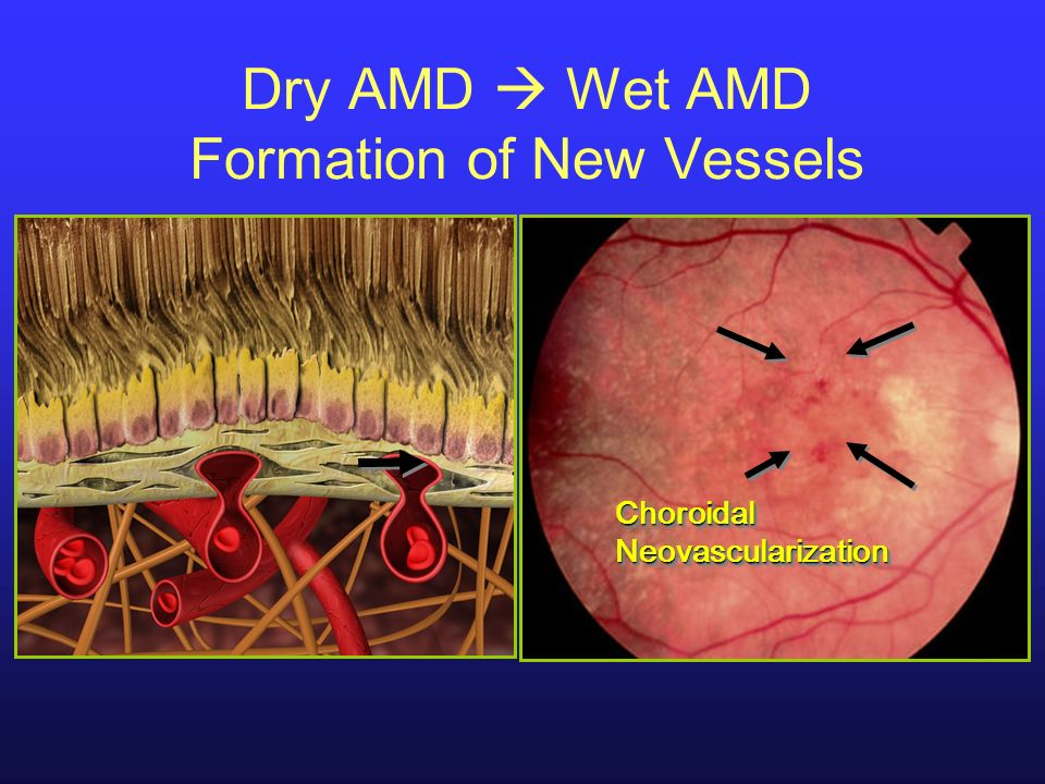 Dry AMD  Wet AMD Formation of New Vessels
