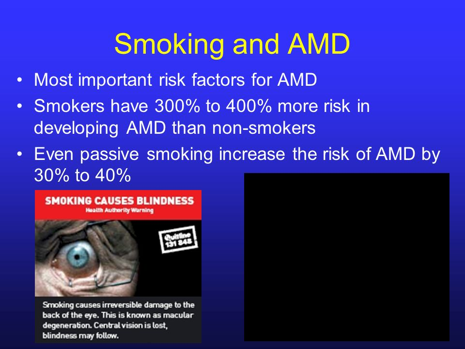 Smoking and AMD Most important risk factors for AMD