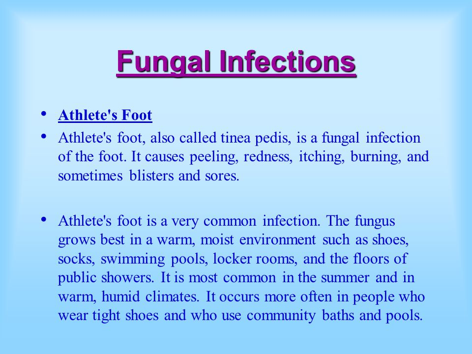 Fungal Infections Athlete s Foot