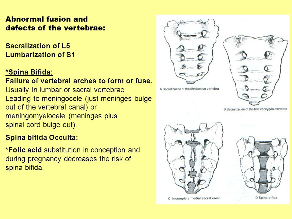 Abnormal fusion and defects of the vertebrae: Sacralization of L5. Lumbarization of S1. *Spina Bifida: