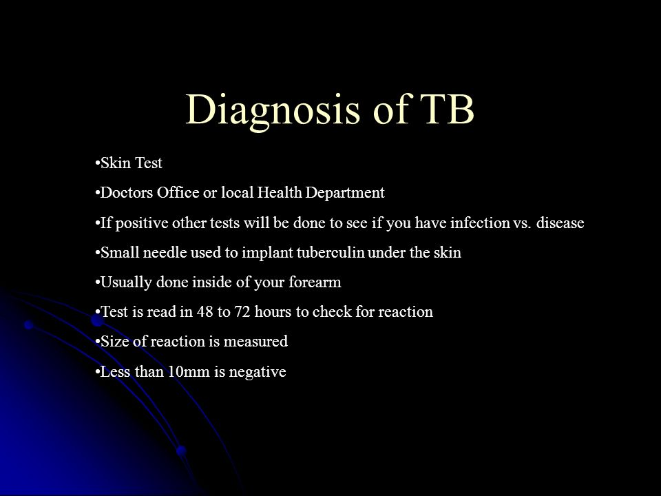Diagnosis of TB Skin Test Doctors Office or local Health Department
