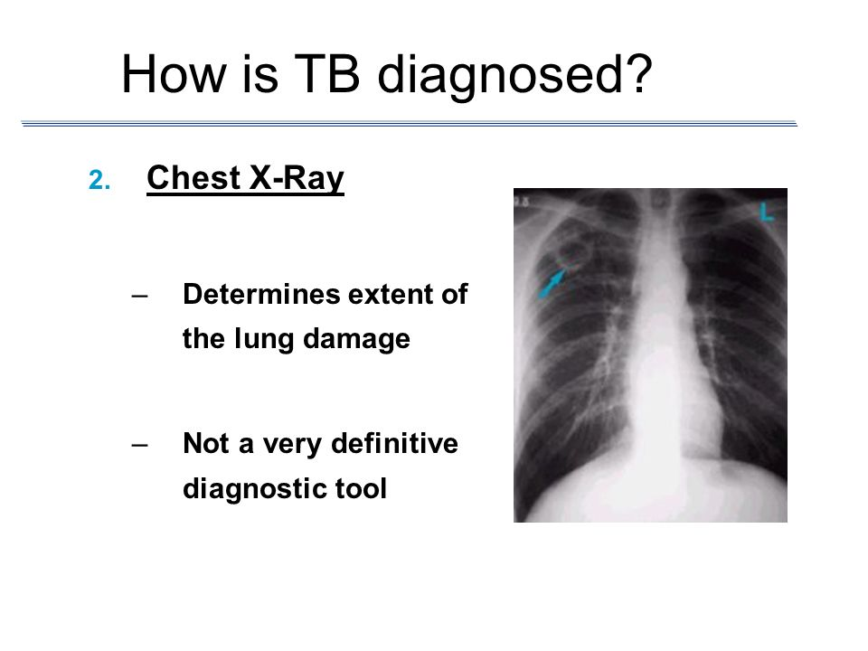 How is TB diagnosed Chest X-Ray Determines extent of the lung damage