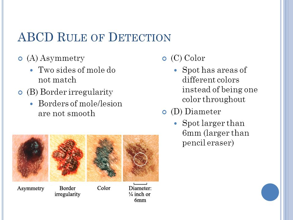 ABCD Rule of Detection (A) Asymmetry Two sides of mole do not match