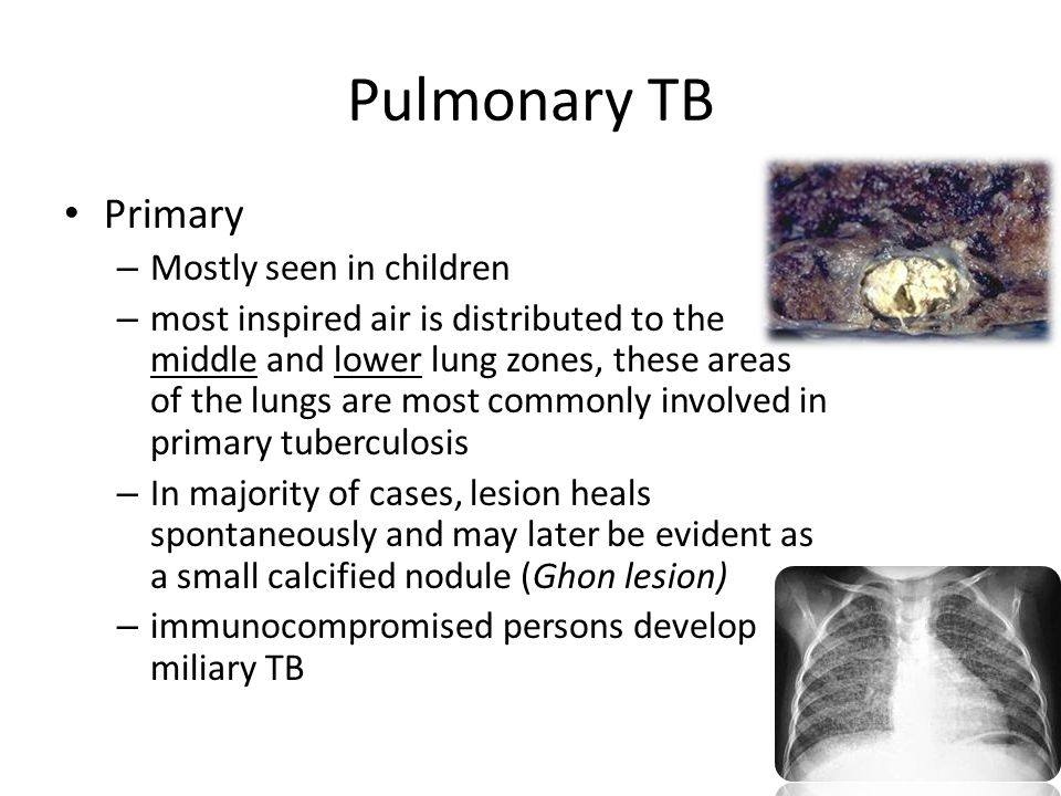 Pulmonary TB Primary Mostly seen in children