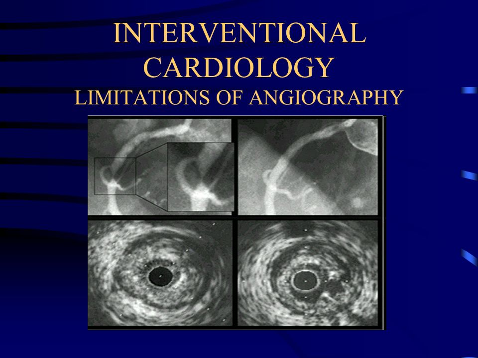 INTERVENTIONAL CARDIOLOGY LIMITATIONS OF ANGIOGRAPHY