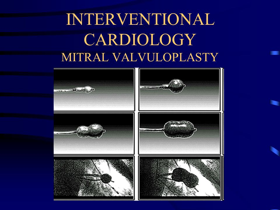 INTERVENTIONAL CARDIOLOGY MITRAL VALVULOPLASTY