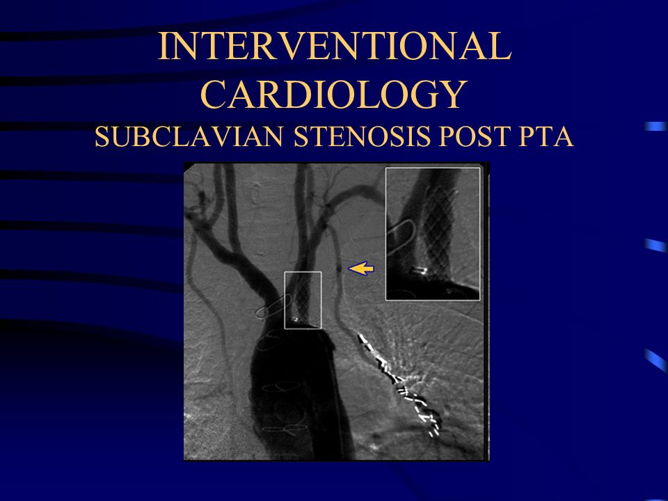 INTERVENTIONAL CARDIOLOGY SUBCLAVIAN STENOSIS POST PTA