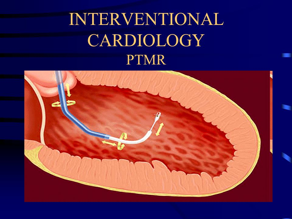 INTERVENTIONAL CARDIOLOGY PTMR