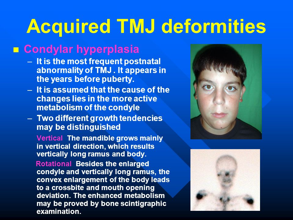Acquired TMJ deformities