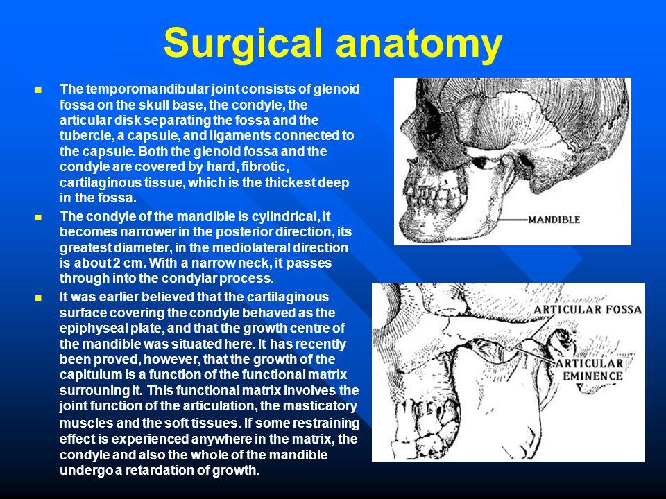 Diseases of the temporomandibular joint - ppt video online download