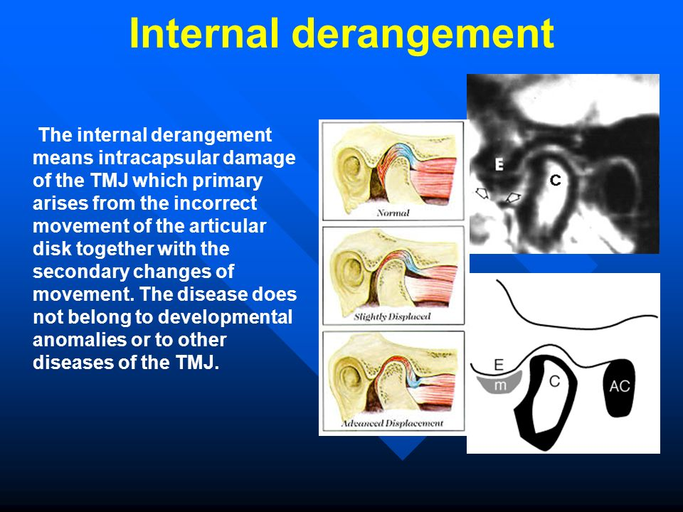 Internal derangement