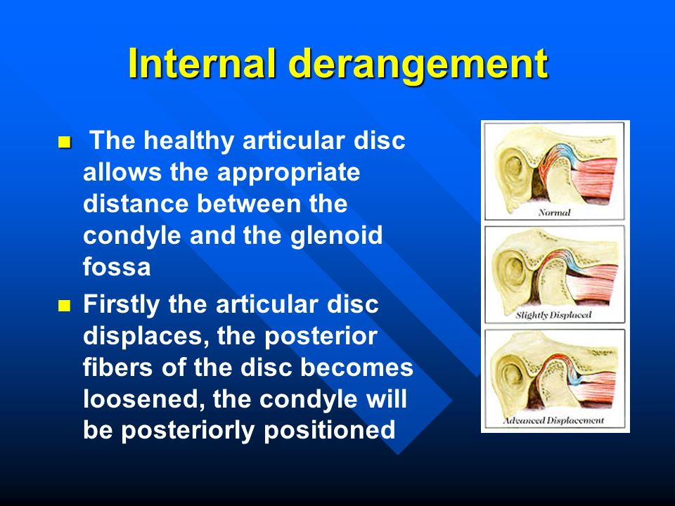 Internal derangement The healthy articular disc allows the appropriate distance between the condyle and the glenoid fossa.