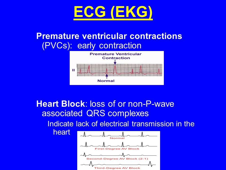 ECG (EKG) Premature ventricular contractions (PVCs): early contraction
