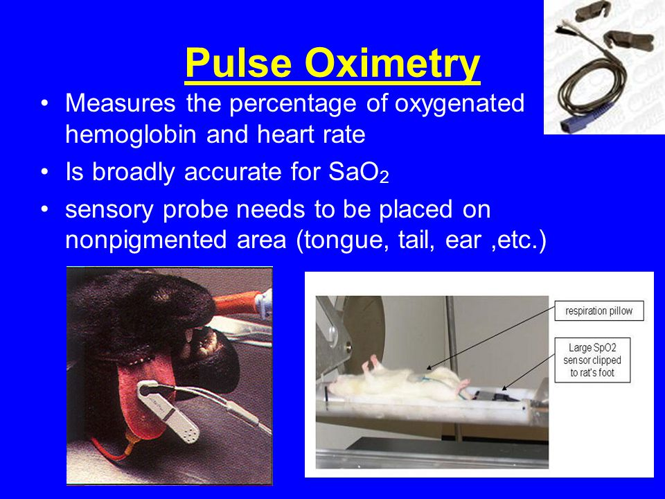 Pulse Oximetry Measures the percentage of oxygenated hemoglobin and heart rate. Is broadly accurate for SaO2.