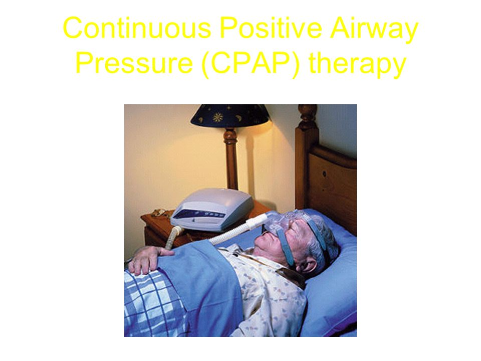 Continuous Positive Airway Pressure (CPAP) therapy