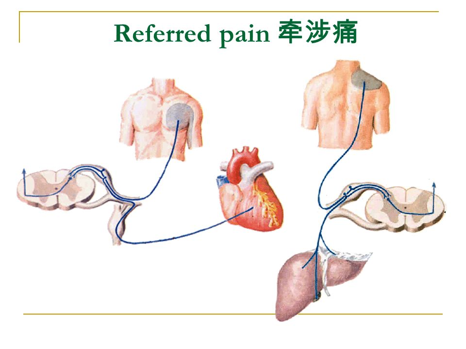 Referred pain 牵涉痛