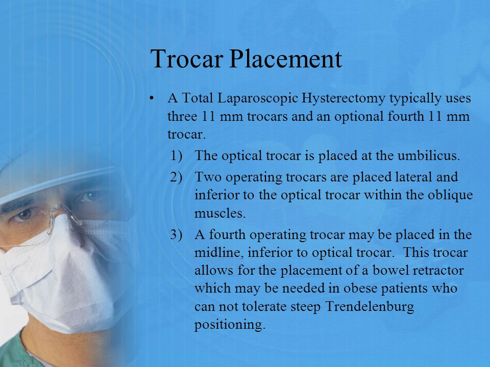 Trocar Placement A Total Laparoscopic Hysterectomy typically uses three 11 mm trocars and an optional fourth 11 mm trocar.
