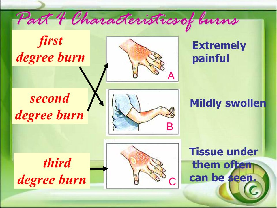 Part 4 Characteristics of burns