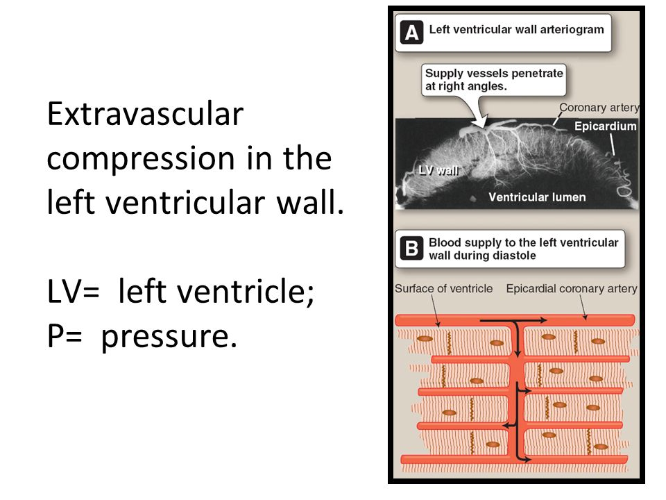Extravascular compression in the left ventricular wall