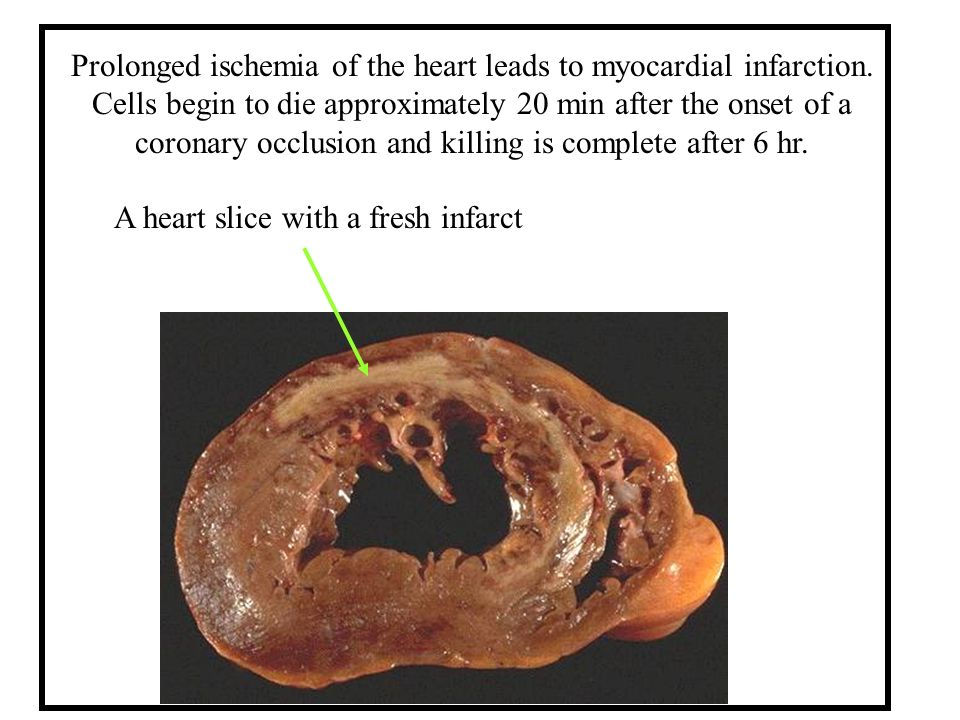 Prolonged ischemia of the heart leads to myocardial infarction