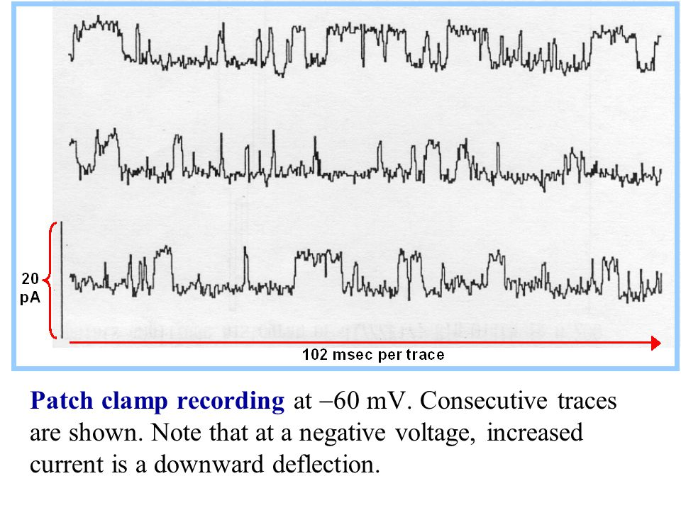 Patch clamp recording at -60 mV. Consecutive traces are shown